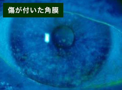 の で 目 コンタクト 紛失 中 あれっ、目にコンタクトが入っているか分からない!というときはどうする?
