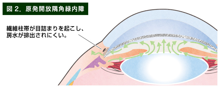 【画像】原発開放隅角緑内障