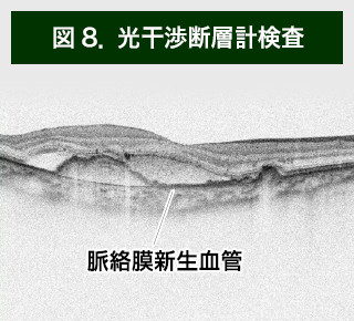 【画像】光干渉断層計検査